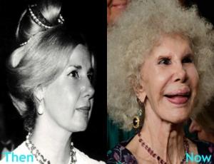 Duchess-of-Alba-Plastic-Surgery
