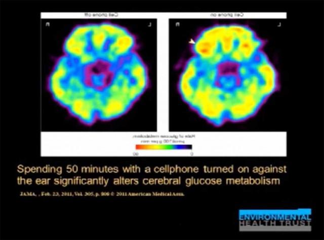 brain-glucose-1024x761